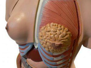 Операция по увеличению груди или увеличивающая маммопластика