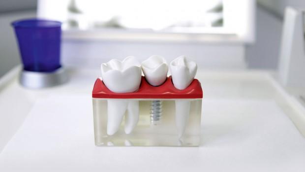 Имплантация зубов – это эффективный способ заместить утраченные зубы имплантатом