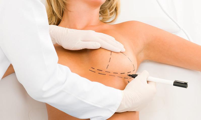 Пластика груди — стоит ли оно того?
