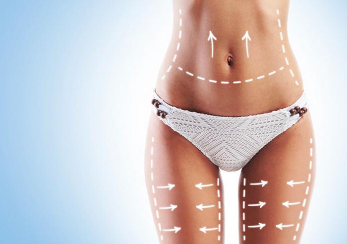Мифы о липосакции — подкожный жир