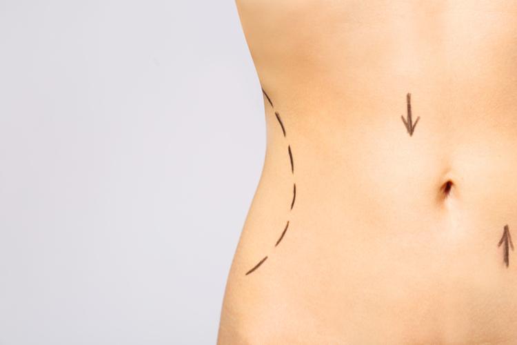 Абдоминопластика: что это за операция и кому она нужна?