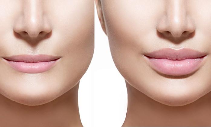 Способы увеличения губ: коллаген и силикон