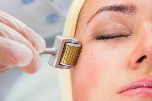 Косметологи нашли безболезненную альтернативу мезотерапии