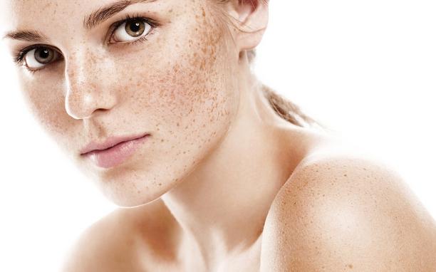 Как удалить веснушки и пятна на коже