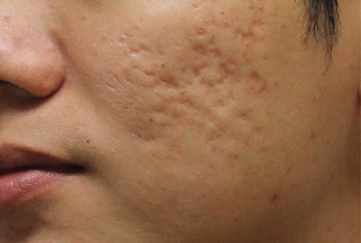 Медики рассказали, как избавиться от неровностей на коже после акне
