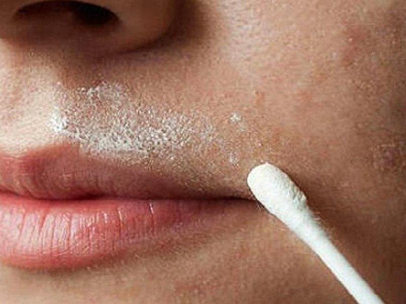 Усы над верхней губой у девушек: что делать, чтобы никто о них не узнал