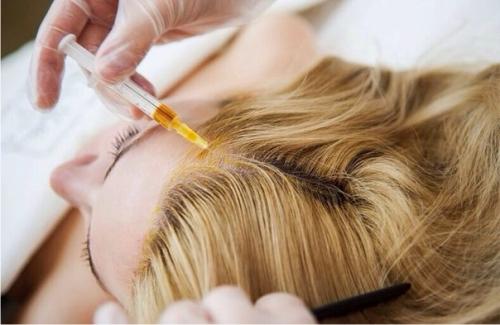 Блеск и здоровье волос: мезотерапия
