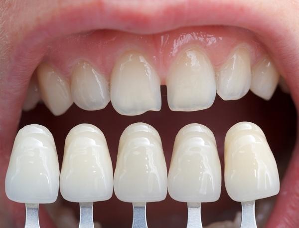 Проблемы с зубными коронками