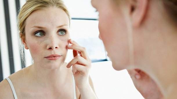 Как спасти обветренную кожу: проверенные способы