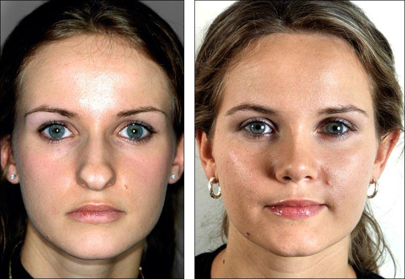 Что может пластика носа?
