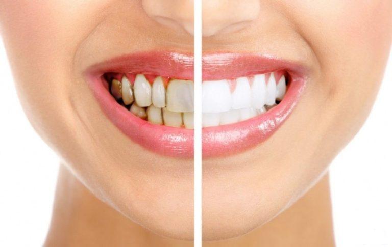 Отбеливание зубов: быстро, эффективно, безопасно