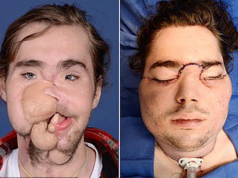 Пересадка лица подарила парню вторую жизнь