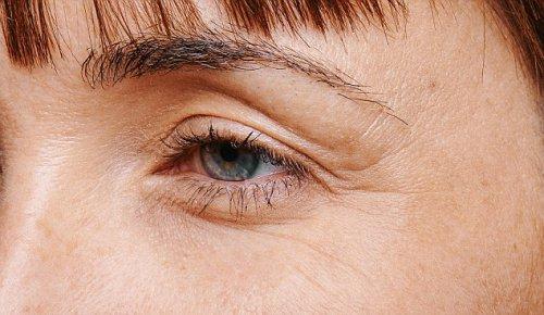 Патчи для глаз избавят от «гусиных лапок»