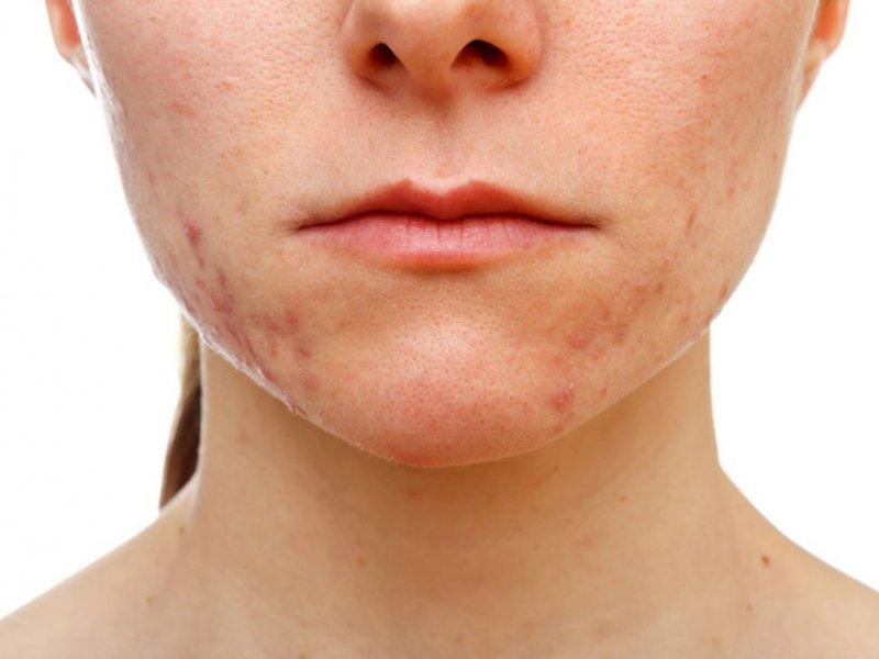 Как вылечить акне на проблемной коже