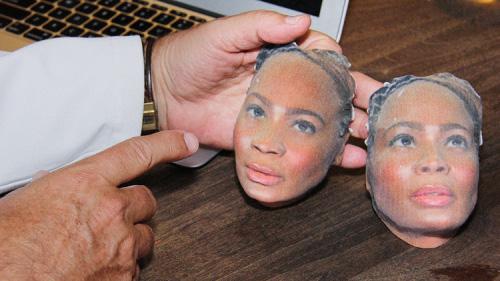 3D-печать дает увидеть результаты пластики еще до операции