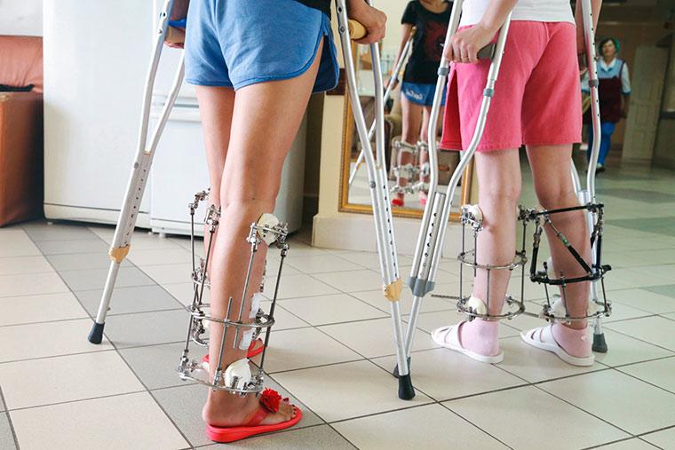 Коррекция и удлинение ног: косметические услуги от профессионалов Волгоградского ортопедического центра