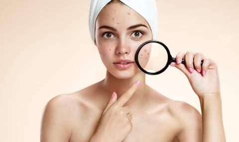 Косметологи назвали продукты, провоцирующие появление акне