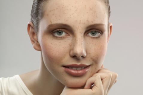 Что делать с веснушками на лице и как их полюбить — эксперты