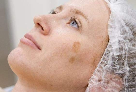 Косметологи поделились советами по лечению пигментных пятен