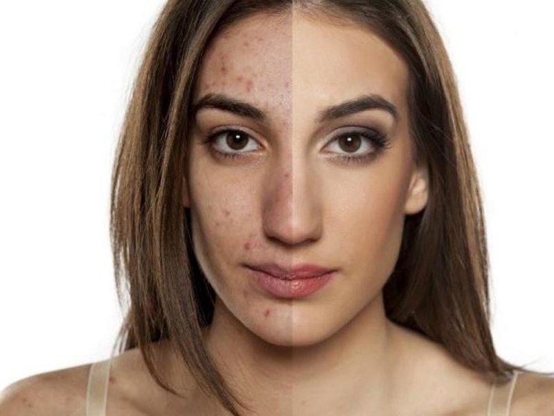 Лекарство от акне воздействует на бактерии кожи