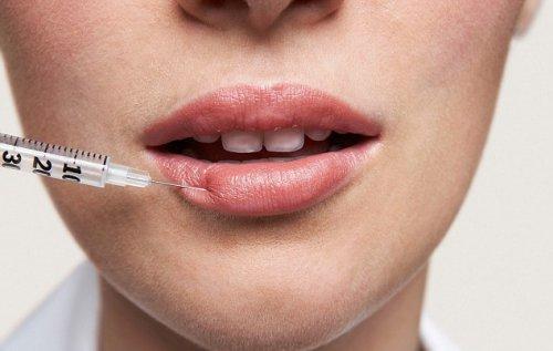 Подростки требуют увеличения губ, несмотря на риски