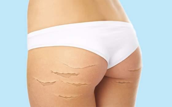 Косметологи подсказали, как избавиться от растяжек за две недели