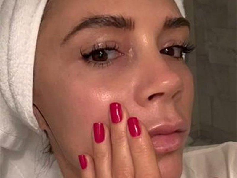 Виктория Бекхэм увлажняет кожу лица своей кровью