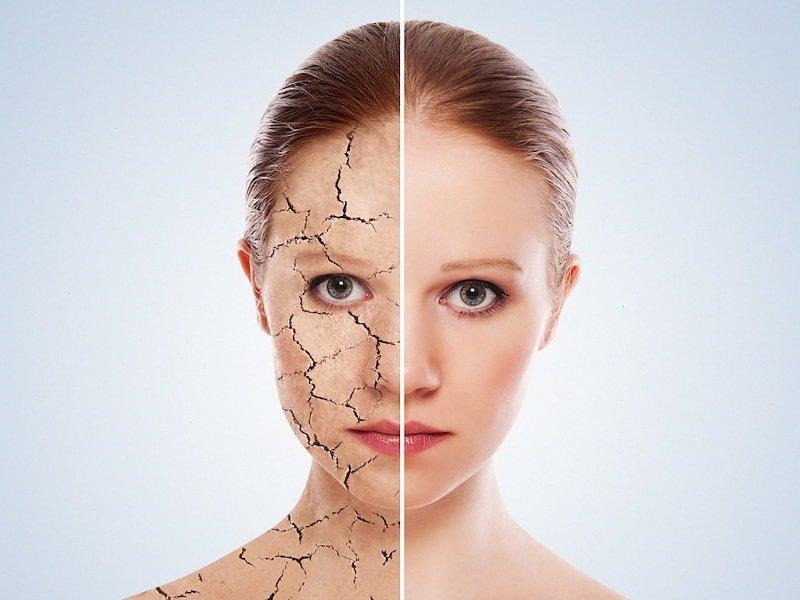 4 страшных проблемы кожи, которые появляются из-за стресса