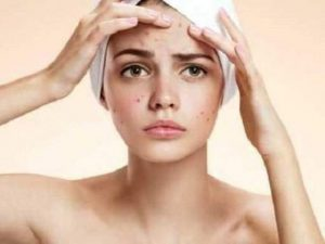 Как избавиться от черных точек на лице: названы эффективные маски