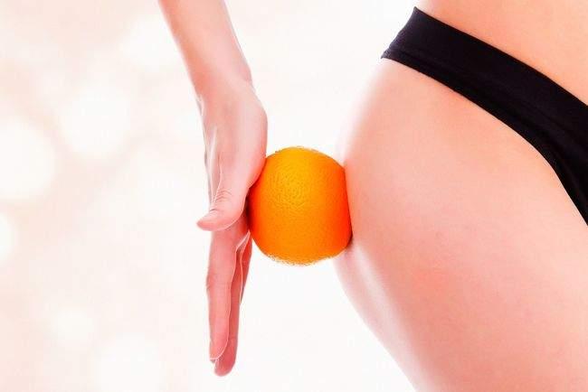 Косметологи подсказали, как вылечить целлюлит в домашних условиях
