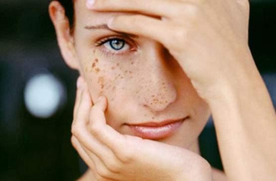 Названа неожиданная причина появления на коже пигментных пятен