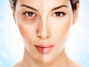15 способов отбелить кожу бесплатно и без косметолога