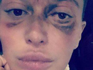 Жительница Москвы ослепла на один глаз после укола косметолога