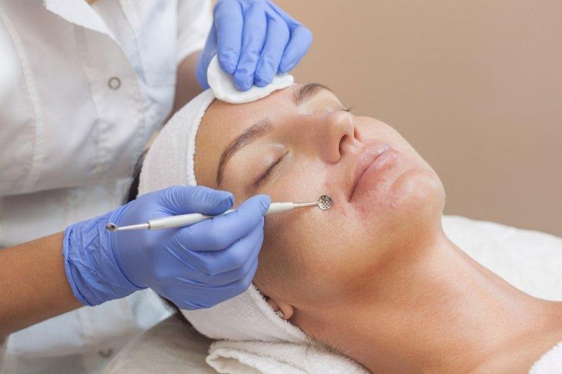Плюсы и минусы процедуры вакуумной чистки лица