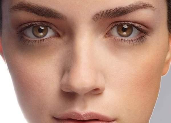 Медики рассказали, о чем свидетельствуют белые круги под глазами