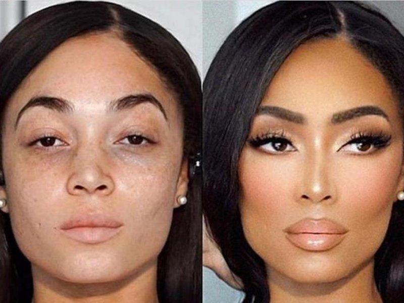 В британских клиниках красоты в моде «лицо богатой девушки»