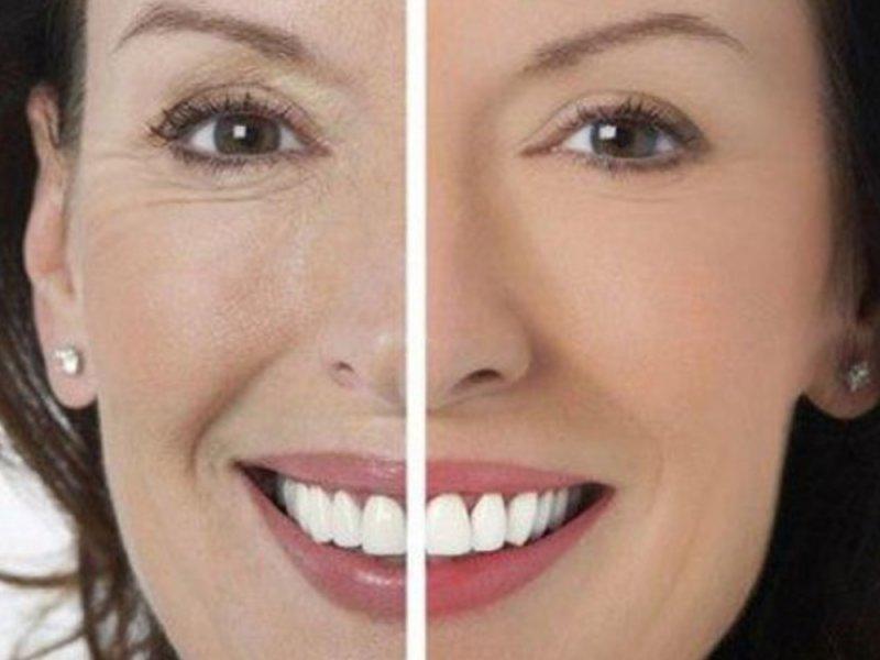 Главной причиной старения кожи является стареющая фибробласта