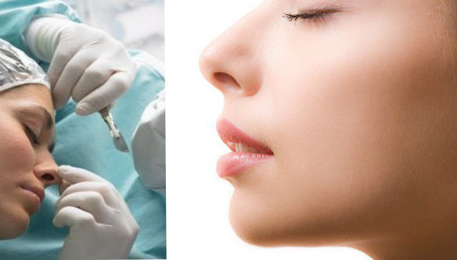 Безопасная пластика носа (ринопластика)