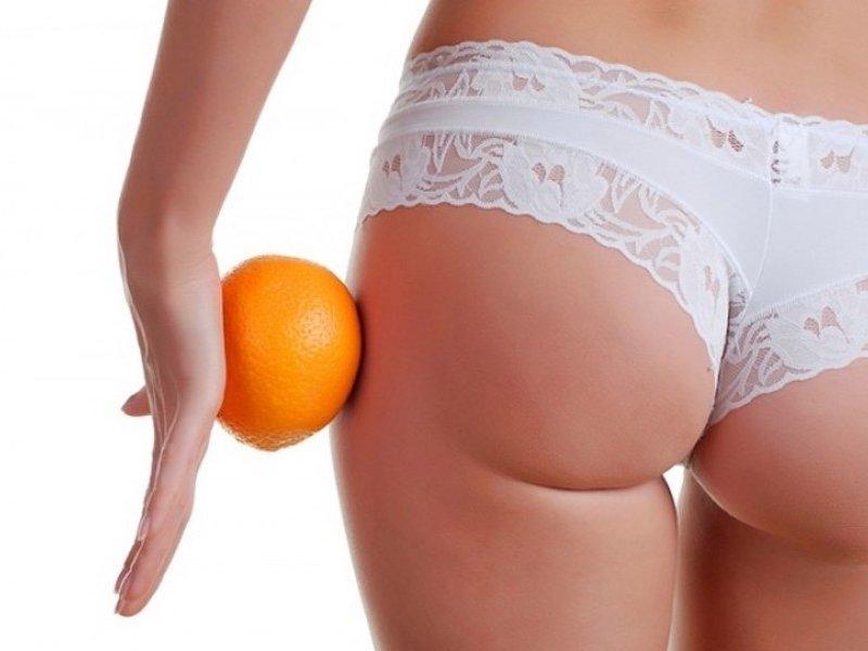 Целлюлит и питание: как избавиться от ненавистной «апельсиновой корки»