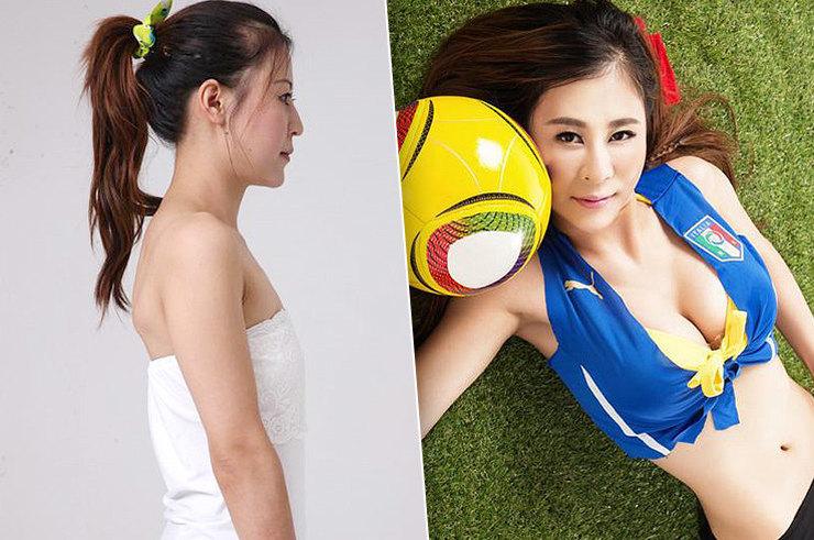 Красота по‑азиатски: какие пластические операции делают восточные девушки