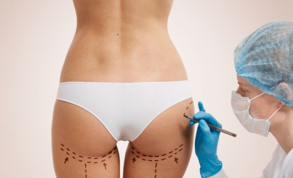 Как проходит операция по увеличению ягодиц? Пластический хирург о случаях из практики