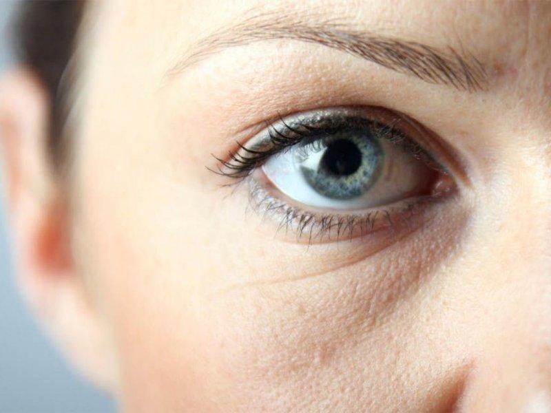 Врач Александра Гонт рассказала, как можно бороться с темными кругами под глазами