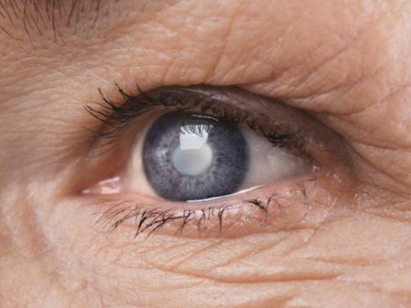 Главные ошибки после хирургического лечения катаракты