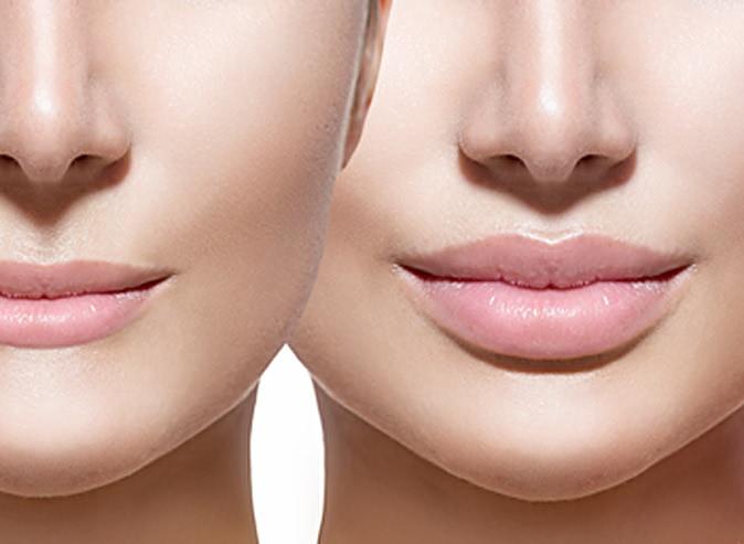 Зачем увеличивают губы? Открываем секрет….