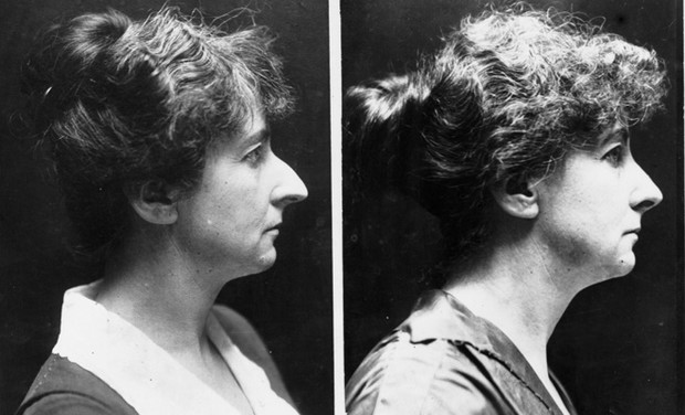 Пухлые губы, маленький нос: как делали пластику 100 лет назад
