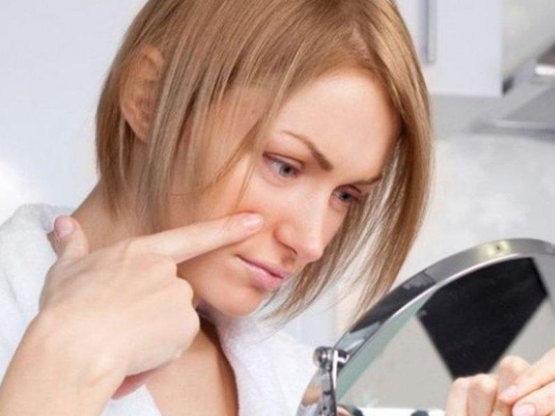 Ухудшение состояния кожи может сигналить о дефиците витамина С