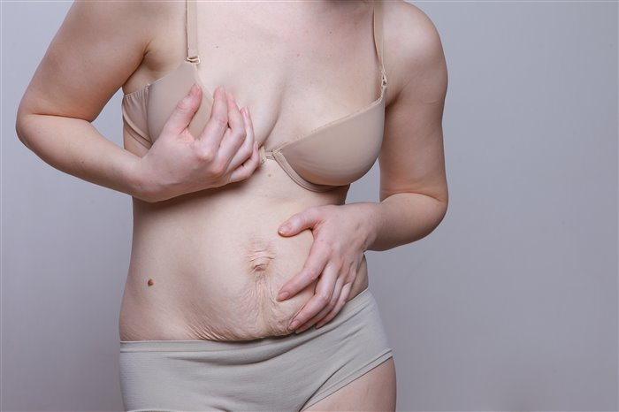 Как убрать обвислый живот после родов?