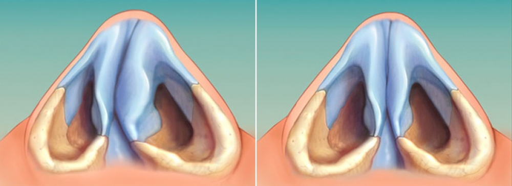 От каких носовых проблем избавит септопластика?