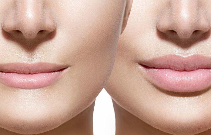 3 правила увеличения губ….
