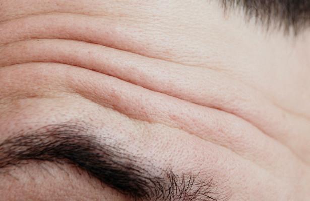 Глубокие морщины на лбу могут предупредить о серьезном заболевании
